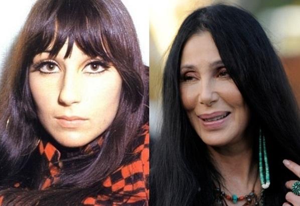 Cher-plastic-surgery b1f79