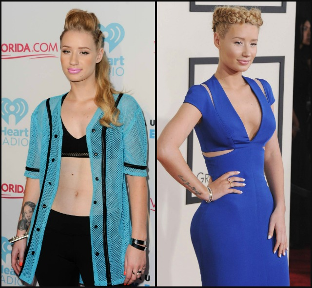 Iggy Azalea breast implants before after 7934a
